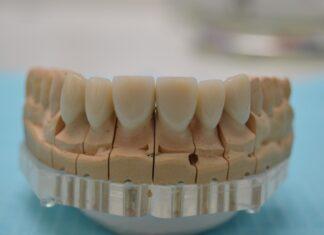 зубные протезы